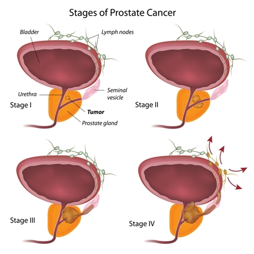 """Vitamin D Acts As Biological """"Brake"""" For Low-Grade Prostate Cancer"""