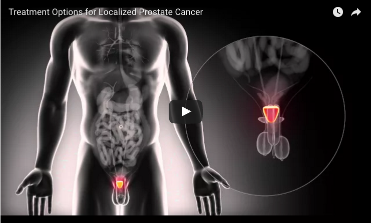 Active Surveillance Better than Surgery or Radiation Therapy for Men at Low Prostate Cancer Risk