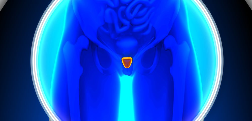 AR Protein in Prostate Cancer Detected with New Imaging Technique