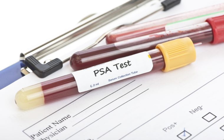 psa screenings for prostate cancer