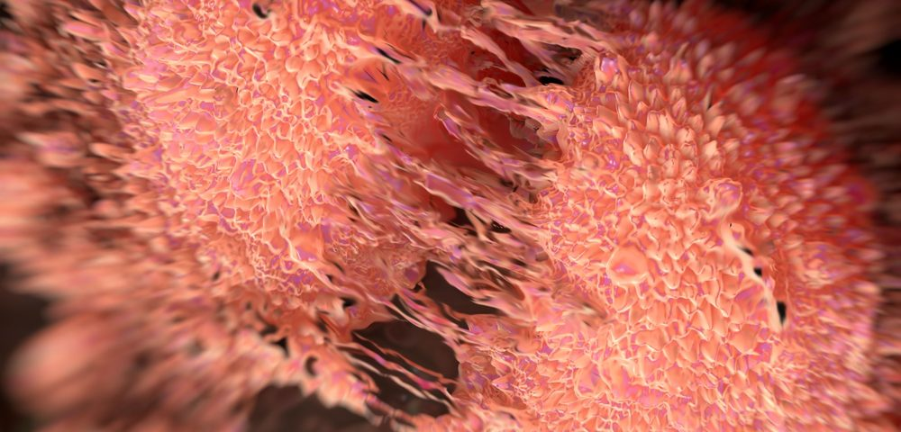 Model Captures 'Spontaneous' Cell Transition to Metastasis in Prostate Cancer Study
