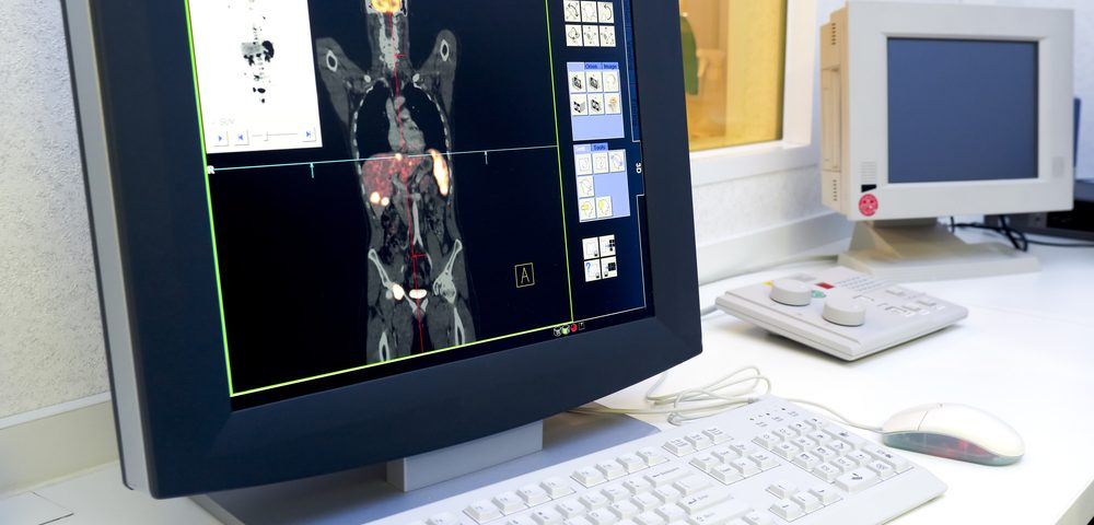 Imaging Agent Able to Detect Early and Advanced Prostate Cancers by Tracking Biomarkers