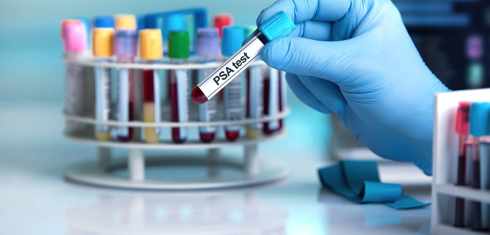 Prostate Cancer Screening Benefits Depend on Men's View of Treatment Side Effects