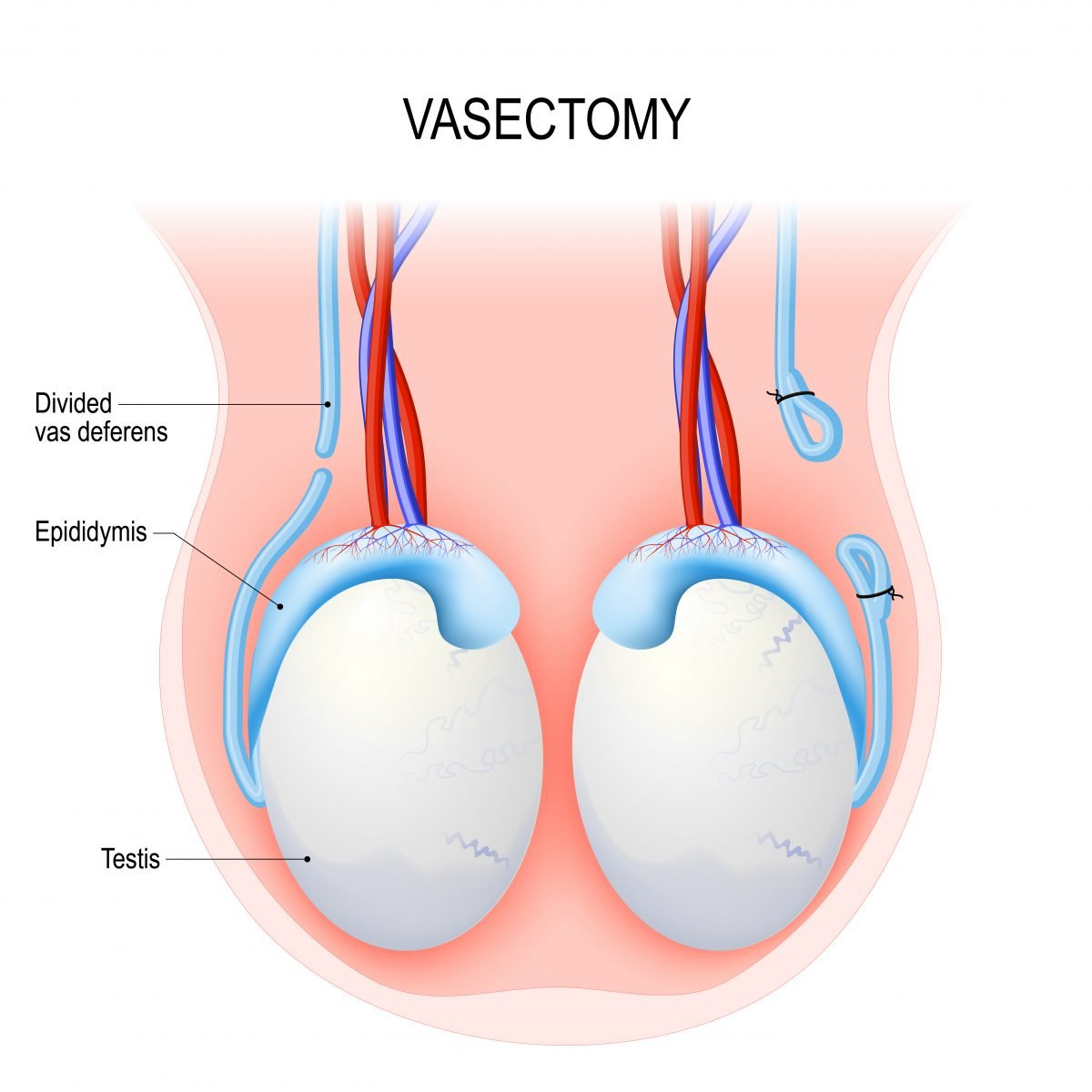 Prostate Cancer Risk Does Not Increase with Vasectomy ...