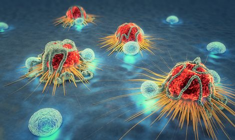 Study Suggests Prostate Cancer Patients Could Produce Antibodies Against Their Own Diseased Cells